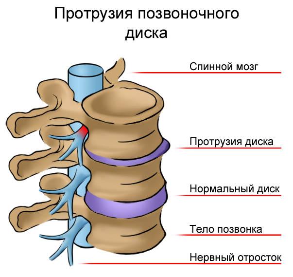 Протрузия позвоночного диска шейного отдела