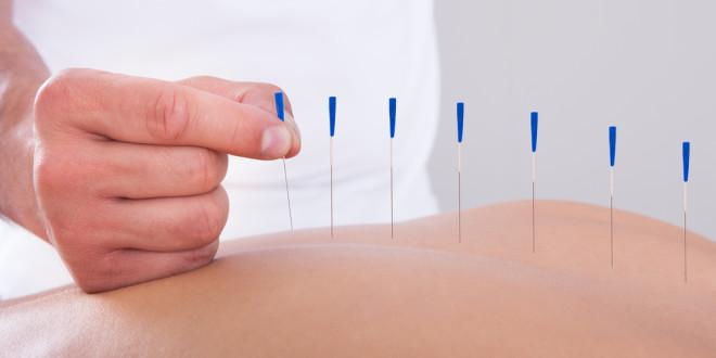 Иглотерапия при грыже позвоночника
