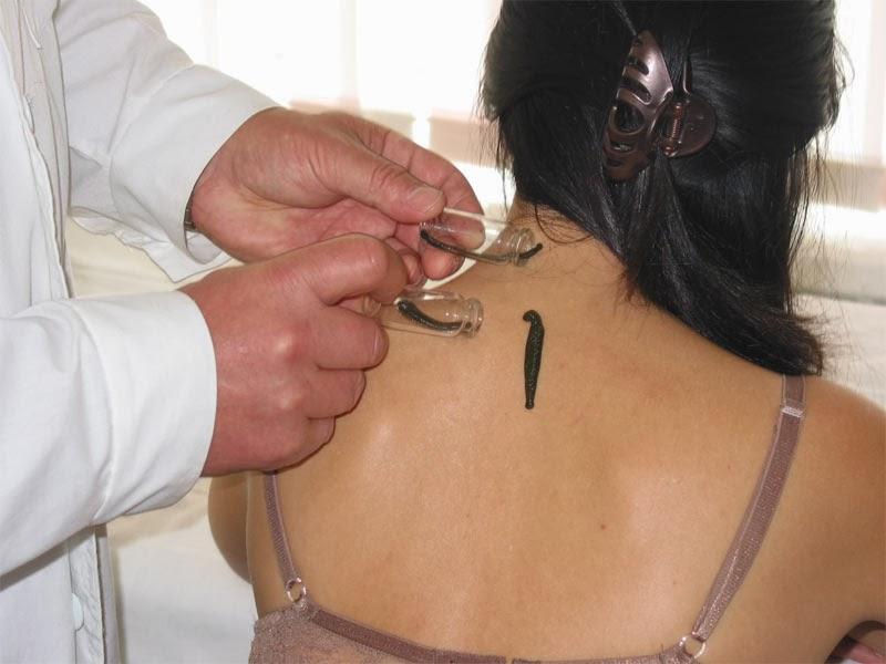 Этапы процедуры гирудотерапии при лечении остеохондроза шейного отдела