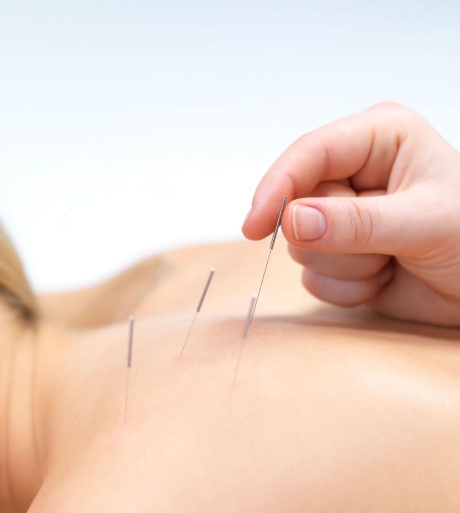 Лечение остеохондроза и грыжи позвоночника иглоукалыванием