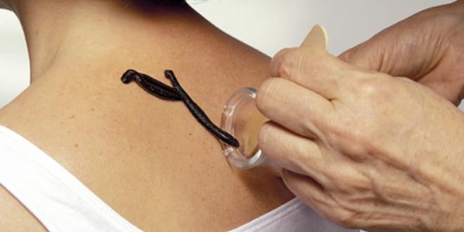 Лечение пиявками остеохондроза шейного отдела