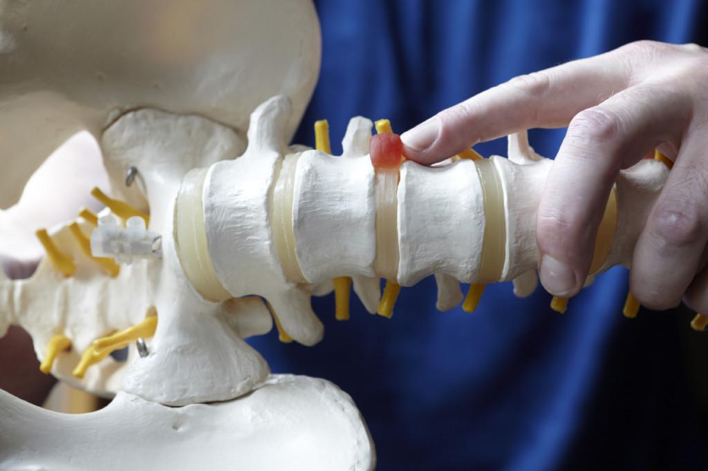 В чем заключается метод лечения межпозвоночной грыжи лазером