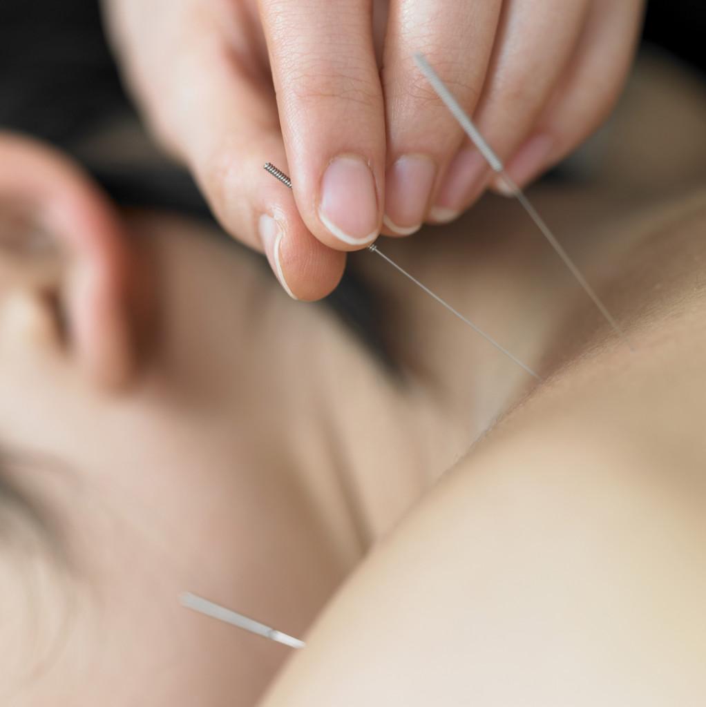 Особенности иглоукалывания при остеохондрозе шеи