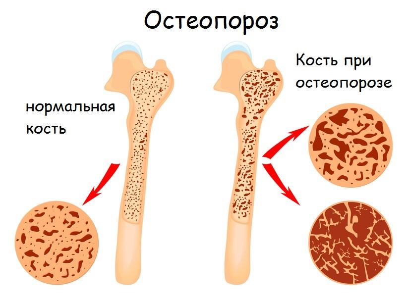 Выделяют два вида остеопороза: первичный и вторичный. К первичному относят болезнь, развивающуюся
